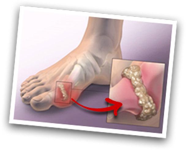 Gout Health